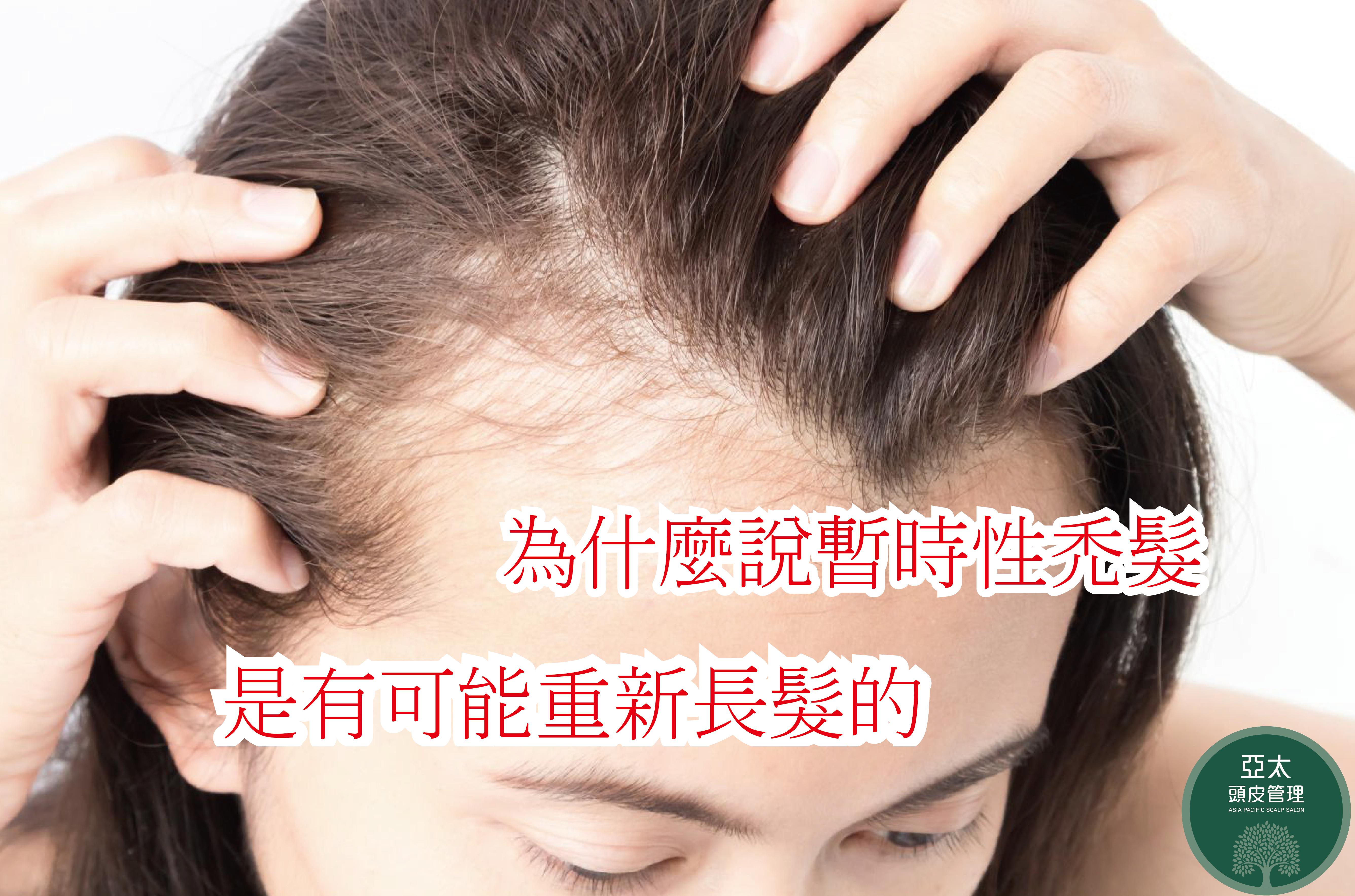 為什麼說暫時性禿髮是有可能重新長髮的-01